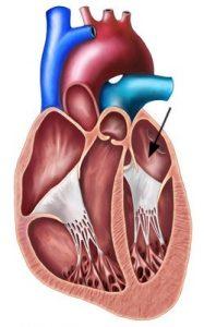 ניתוח ריאות וחזה