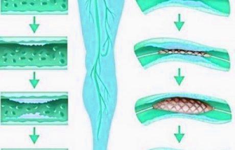 צנתור טרשת עורקים פריפריאלית